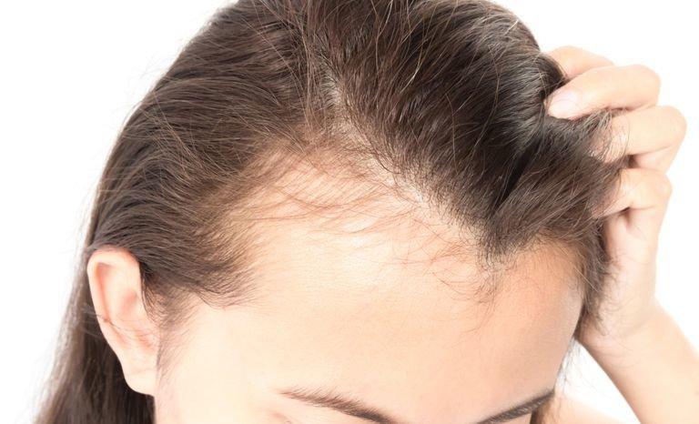 makanan untuk menumbuhkan rambut botak